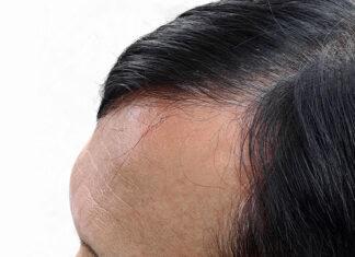 Szanuj włosy